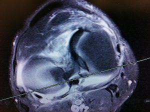 MRI Meniscus